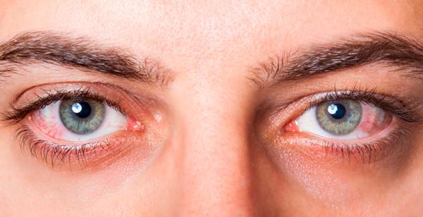 Zamarripa ópticos. Problemas con lentillas