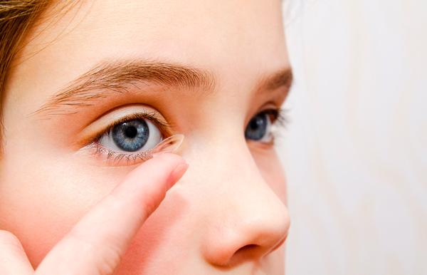 Método Orto-K, lentes de contacto mientras duermes para controlar la miopía. Niña poniéndose las lentillas
